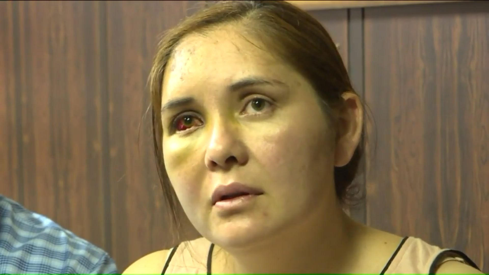 Beronica Ruiz says she was beaten unconscious by a 13-year-old boy who had been bullying her son at school, telling him to go