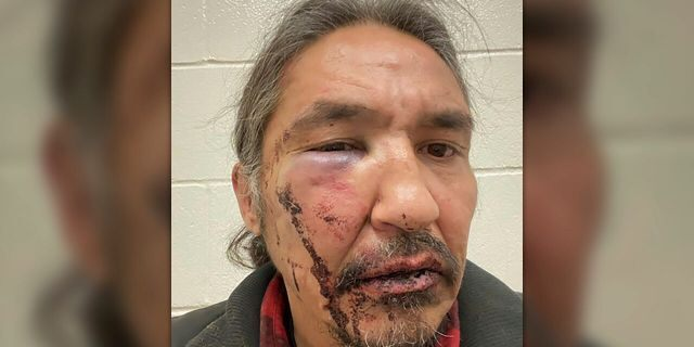 This March 10, 2020 photo shows the bloodied face of Athabasca Chipewyan First Nation Chief Allan Adam after a confrontation with Royal Canadian Mounted Police. Canadian Prime Minister Justin Trudeau says police dashcam video of the violent arrest of the Canadian aboriginal chief is shocking and not an isolated incident. (Allan Adam/The Canadian Press via AP)