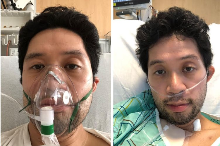 David Lat was hospitalized in March in New York City. He spent six days on a ventilator.