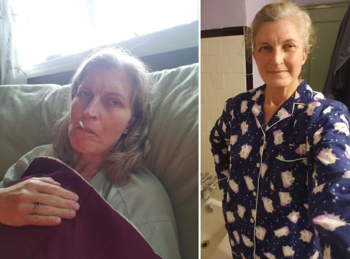 Left: Joyner during the third week of her illness. Right: During the seventh week of illness. She had lost 12 pounds by that
