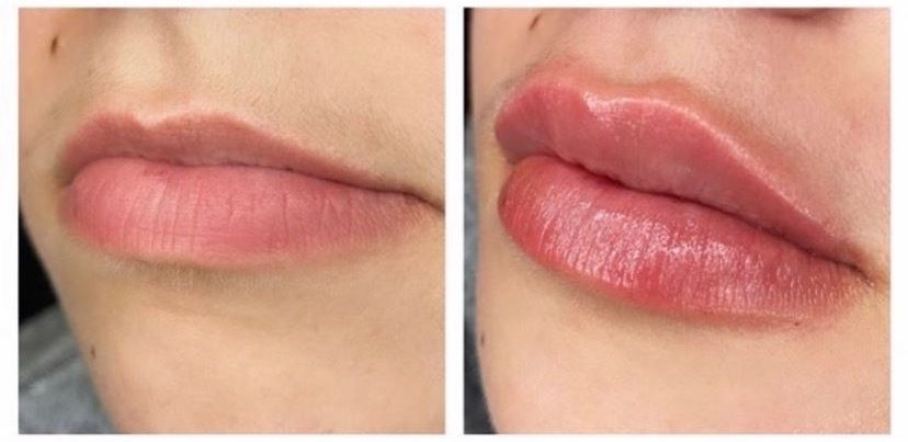 Sky Lane is saving up to get her lips done again, in addition to other procedures.